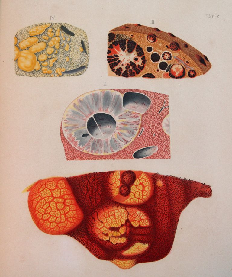 A clinical treatise on the diseases of the liver. Translated by Charles Murchison. F. T. FRERICHS.