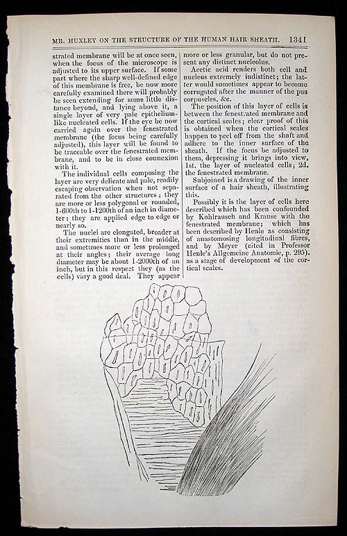"""""""On a hitherto undescribed structure in the human hair sheath."""" In London Medical Gazette, Vol. 36. T. H. HUXLEY."""