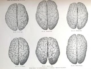 """A study of the brains of six eminent scientists and scholars belonging to the American..."