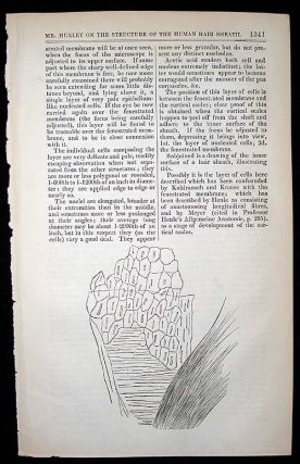 """On a hitherto undescribed structure in the human hair sheath."" In London Medical Gazette, Vol...."